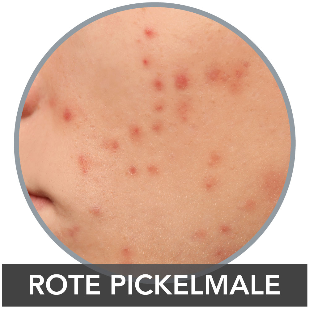 Rote Pickelmale PIE Post Inflammatory Erythema
